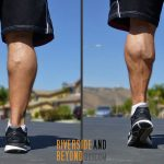 My Shrunken Calf – An Achilles Tendon Rupture Story