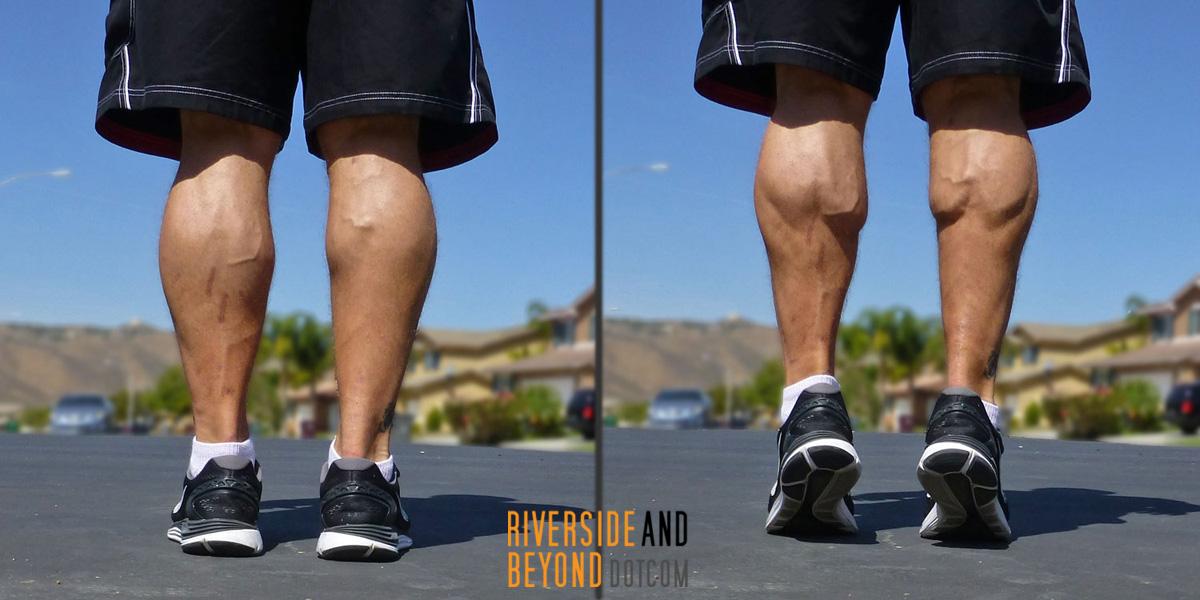 Achilles tendon rupture calf muscles back view.
